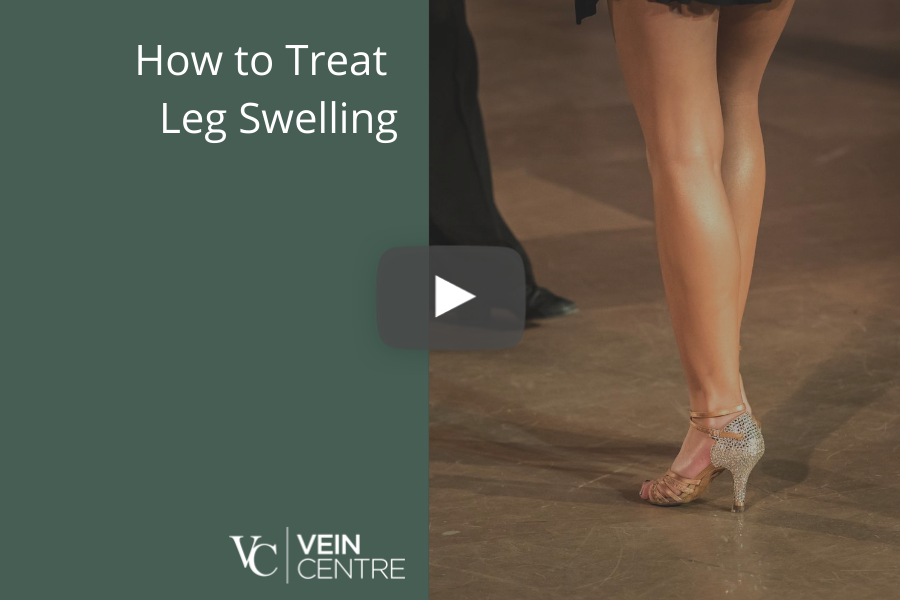 swollen legs how to treat leg swelling in nashville at the vein centre