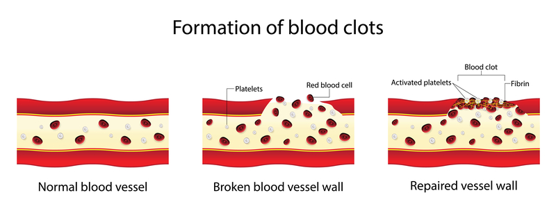Graphic of how blood clots form in veins | Vein Centre in Tennessee