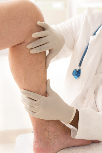 when to see a doctor for varicose veins in tennessee