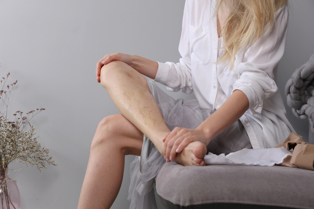 get varicose veins treated in Nashville, Tennessee